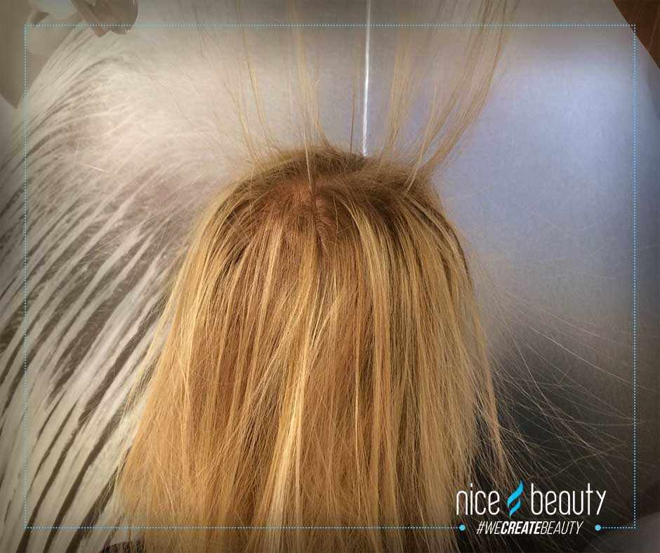 Elektrische Haare Was Mache Ich