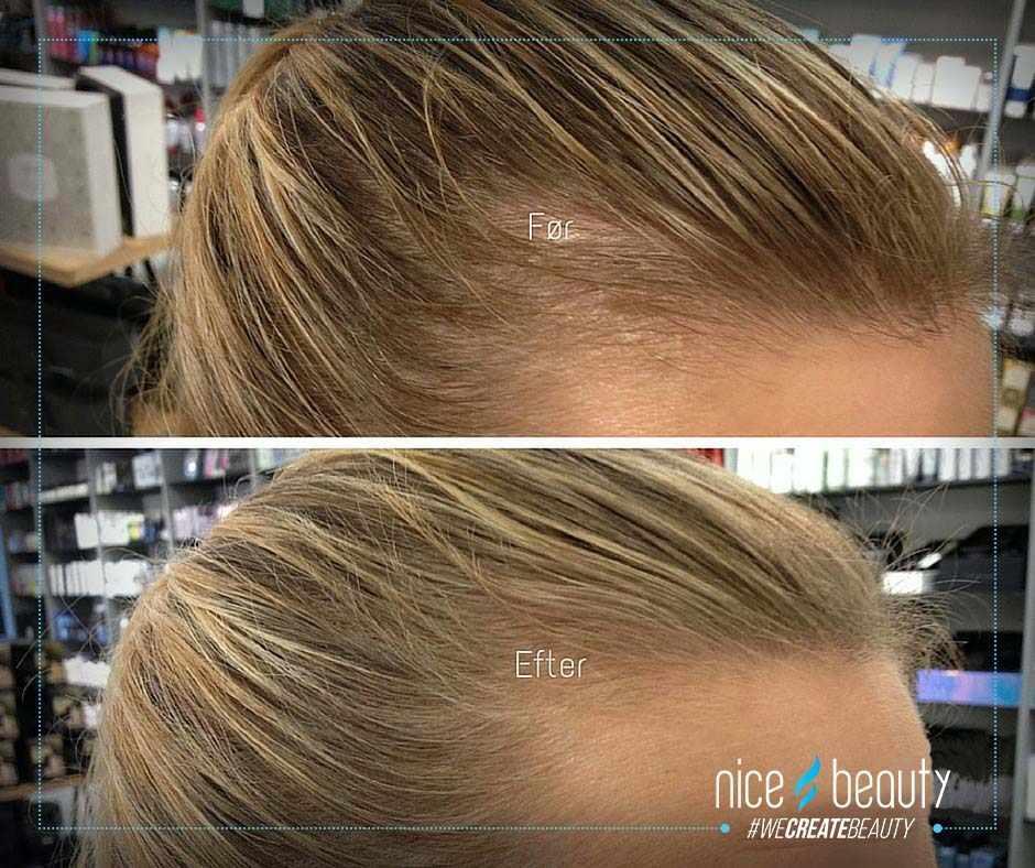 shampoo til fedtet hovedbund og tørt hår