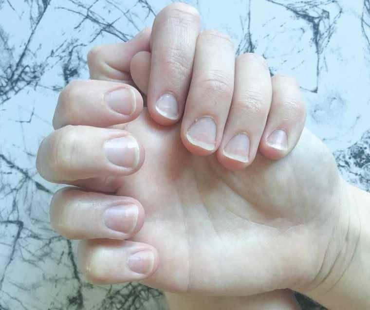 få dine negle til at vokse hurtigt